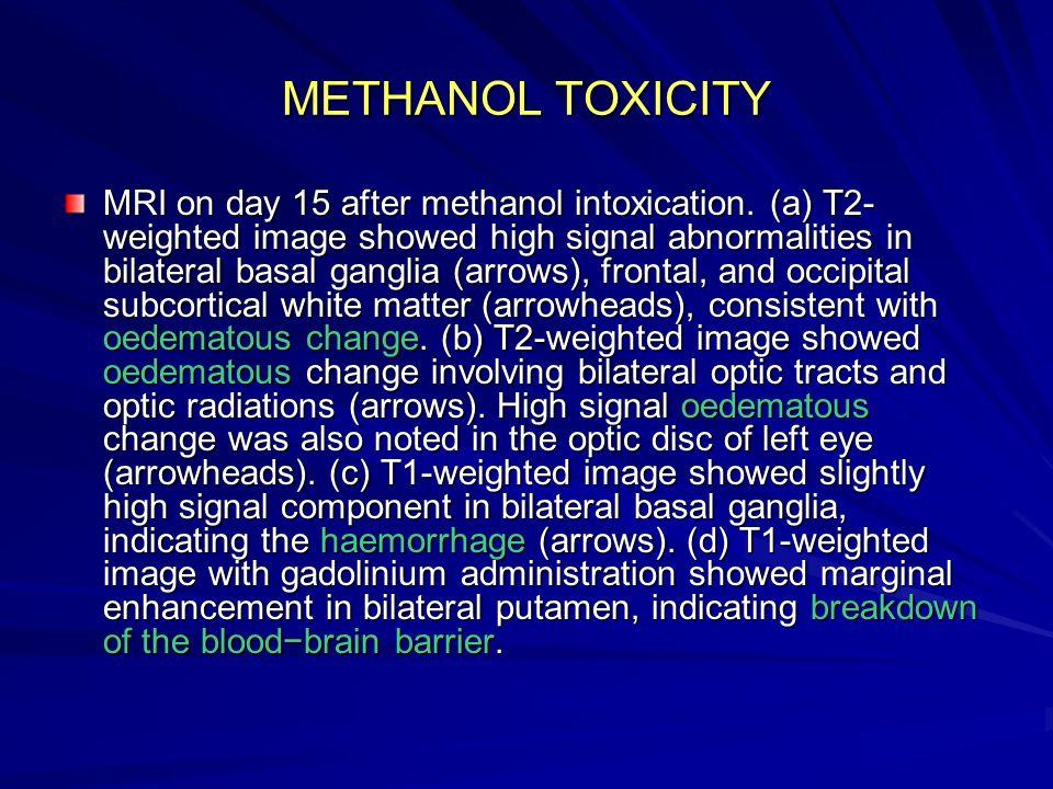 METHANOL TOXICITY