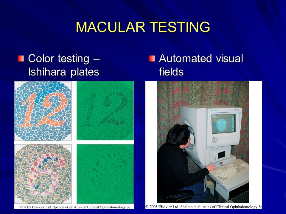 MACULAR TESTING Color testing – Ishihara plates
