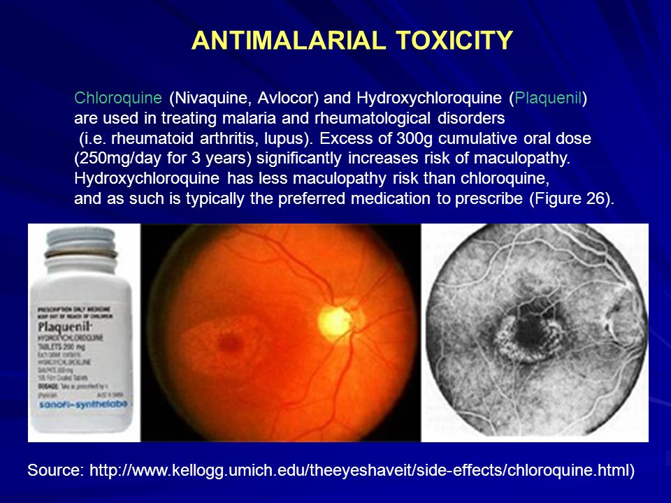 ANTIMALARIAL TOXICITY