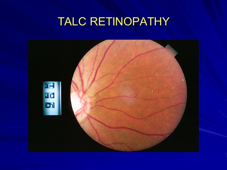 TALC RETINOPATHY