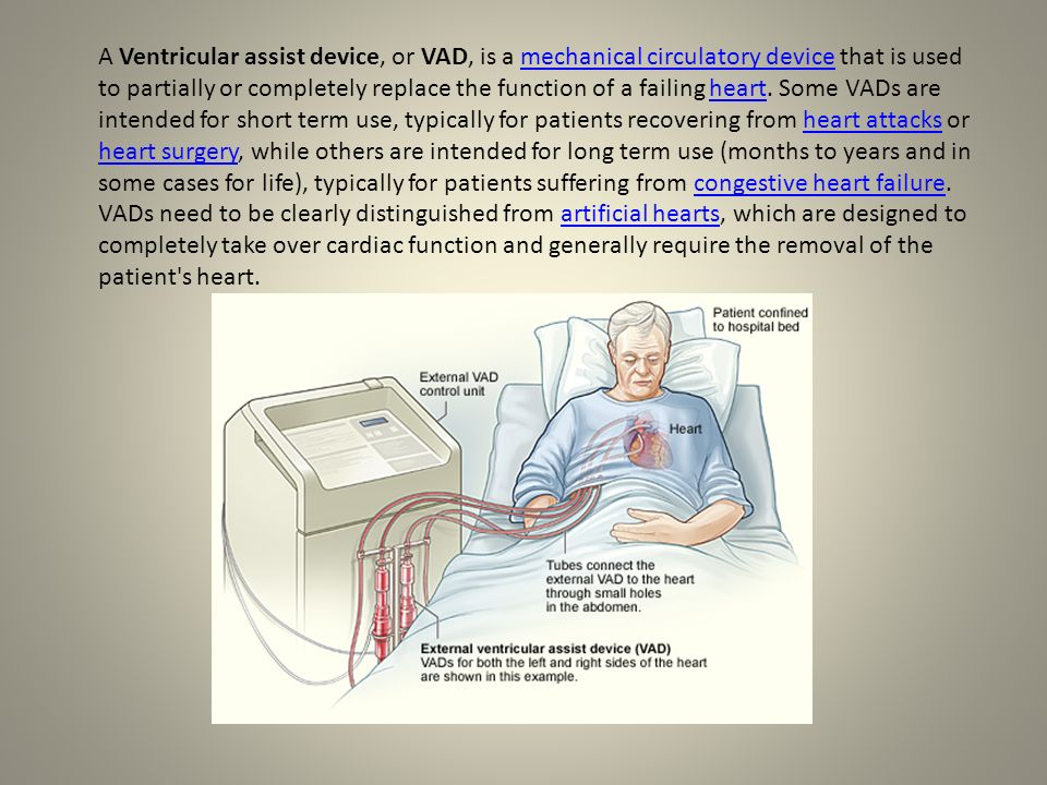 A Ventricular assist device, or VAD, is a mechanical circulatory device that is used to partially or completely replace the function of a failing heart. Some VADs are intended for short term use, typically for patients recovering from heart attacks or heart surgery, while others are intended for long term use (months to years and in some cases for life), typically for patients suffering from congestive heart failure.