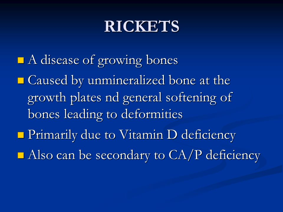 RICKETS A disease of growing bones