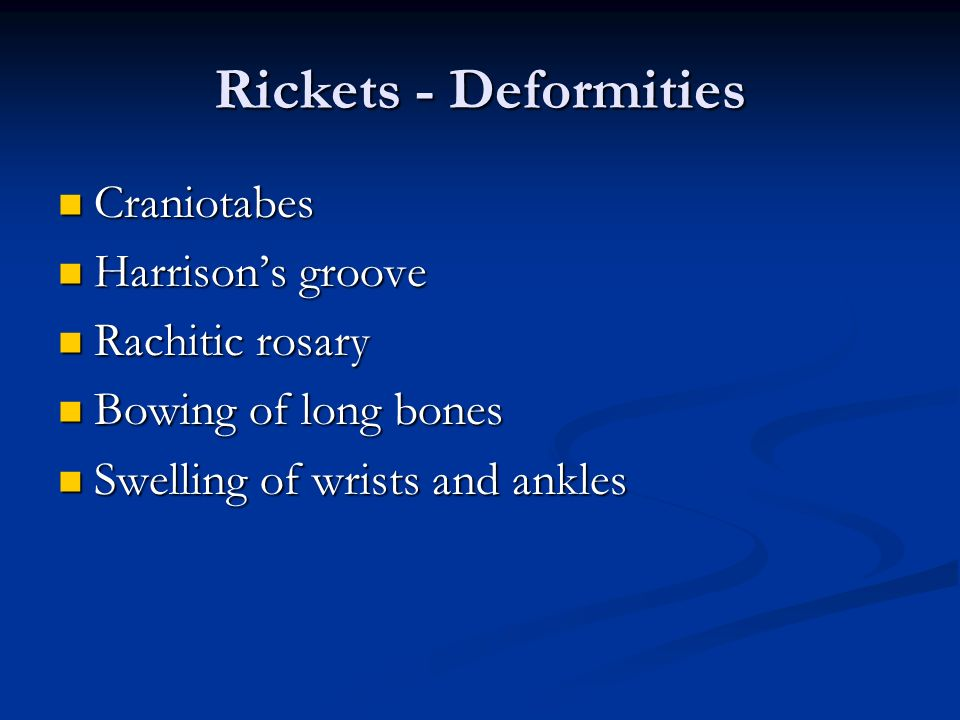 Rickets - Deformities Craniotabes Harrison's groove Rachitic rosary