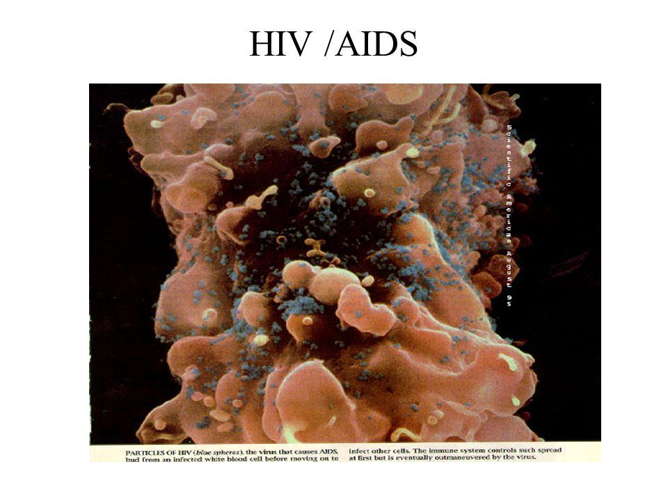 HIV /AIDS
