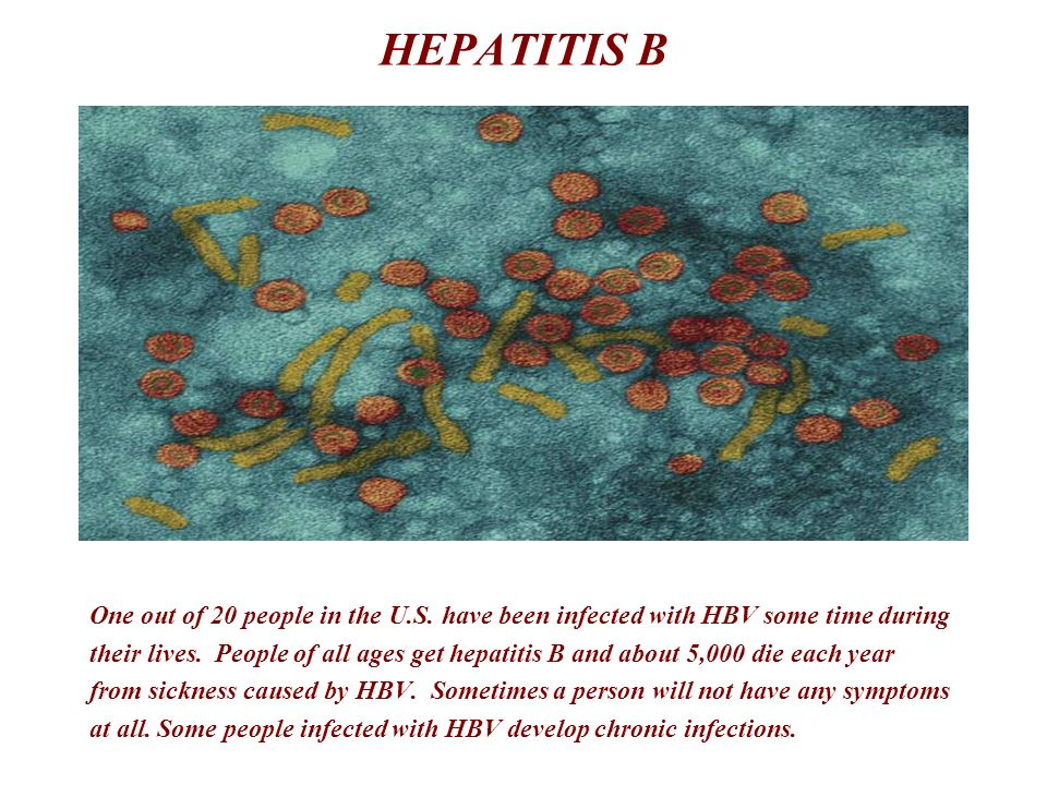 HEPATITIS B One out of 20 people in the U.S. have been infected with HBV some time during.