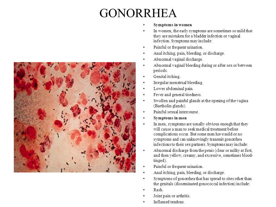 GONORRHEA Symptoms in women