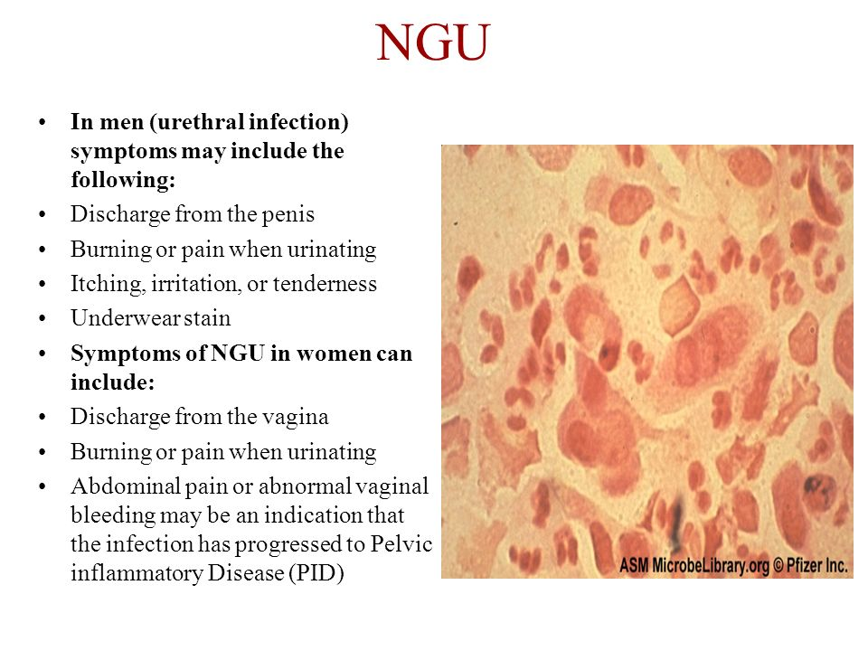 NGU In men (urethral infection) symptoms may include the following: