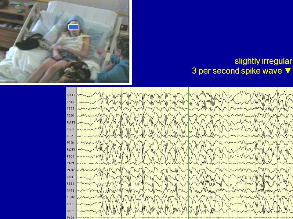 slightly irregular 3 per second spike wave ▼