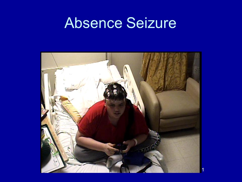 Absence Seizure