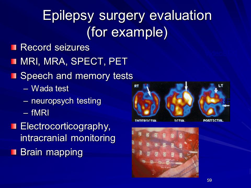 Epilepsy surgery evaluation (for example)