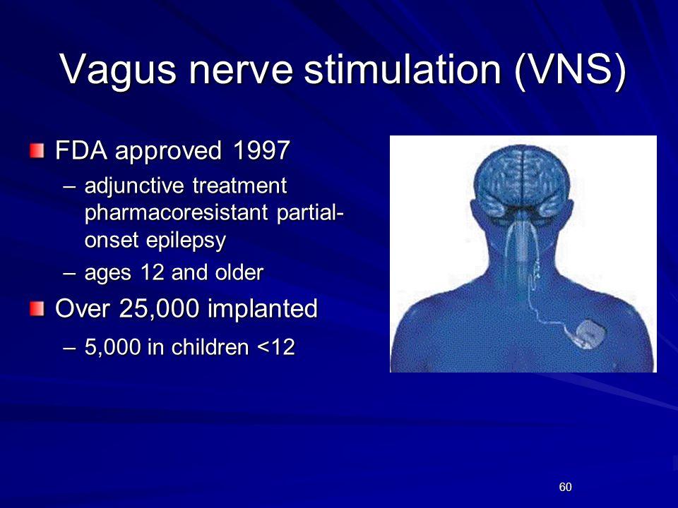 Vagus nerve stimulation (VNS)