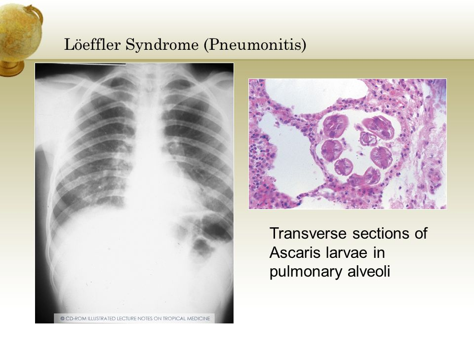 Löeffler Syndrome (Pneumonitis)