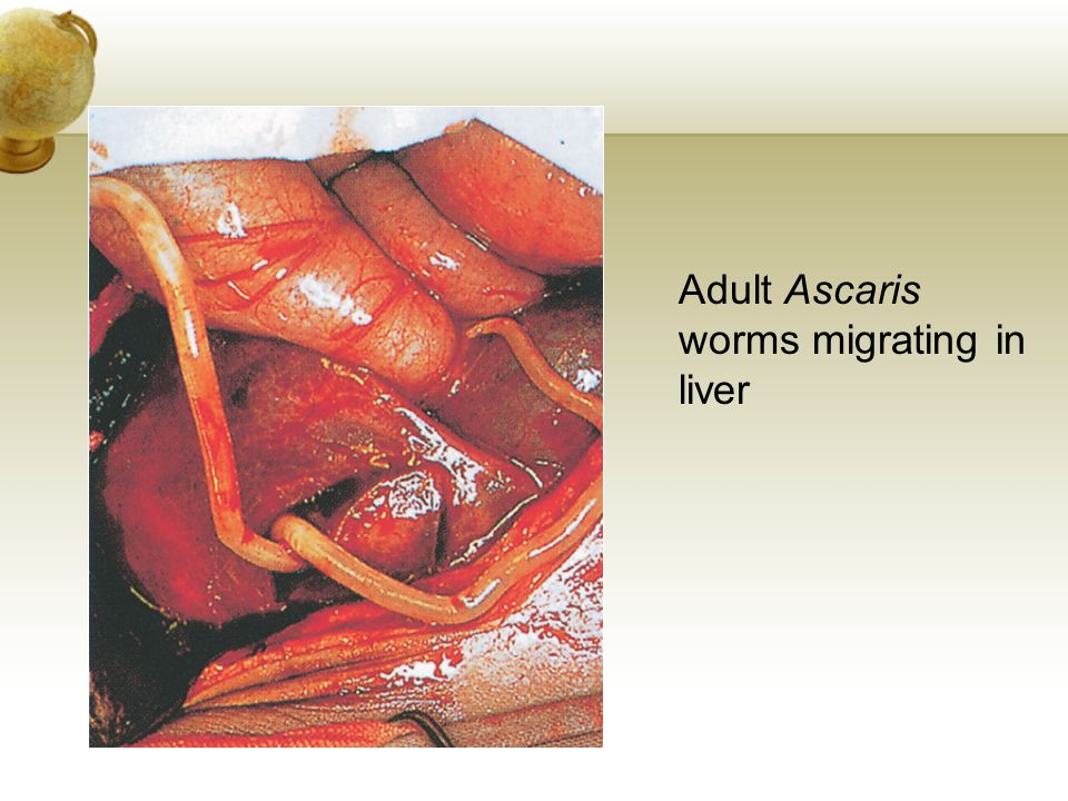 Adult Ascaris worms migrating in liver