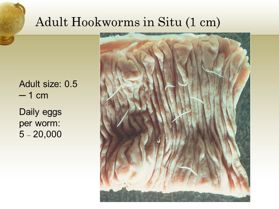 Adult Hookworms in Situ (1 cm)