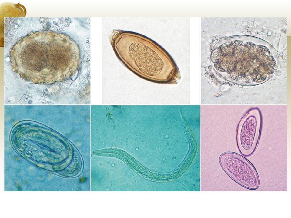 FIGURE Eggs and larvae of common intestinal roundworms