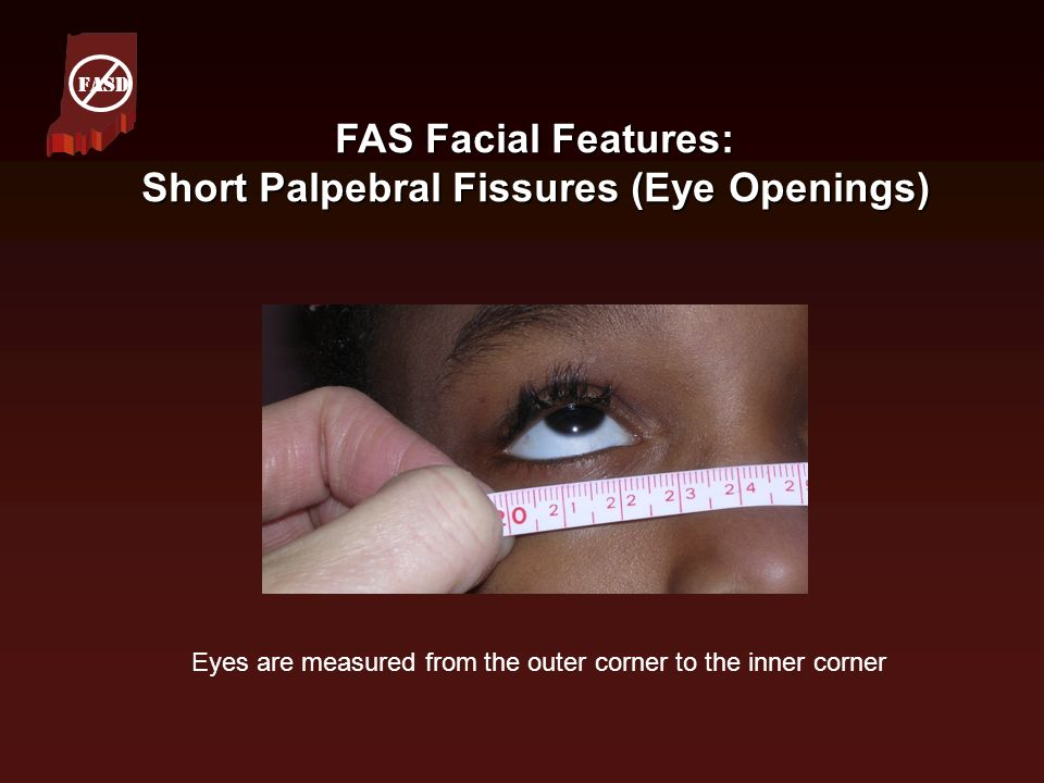 FAS Facial Features: Short Palpebral Fissures (Eye Openings)