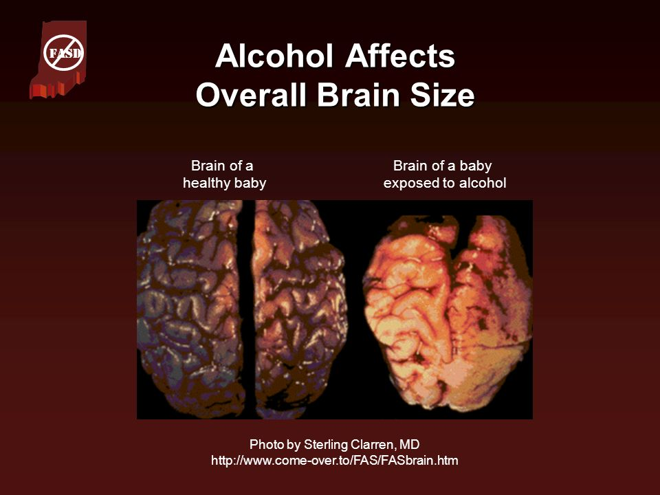 Alcohol Affects Overall Brain Size