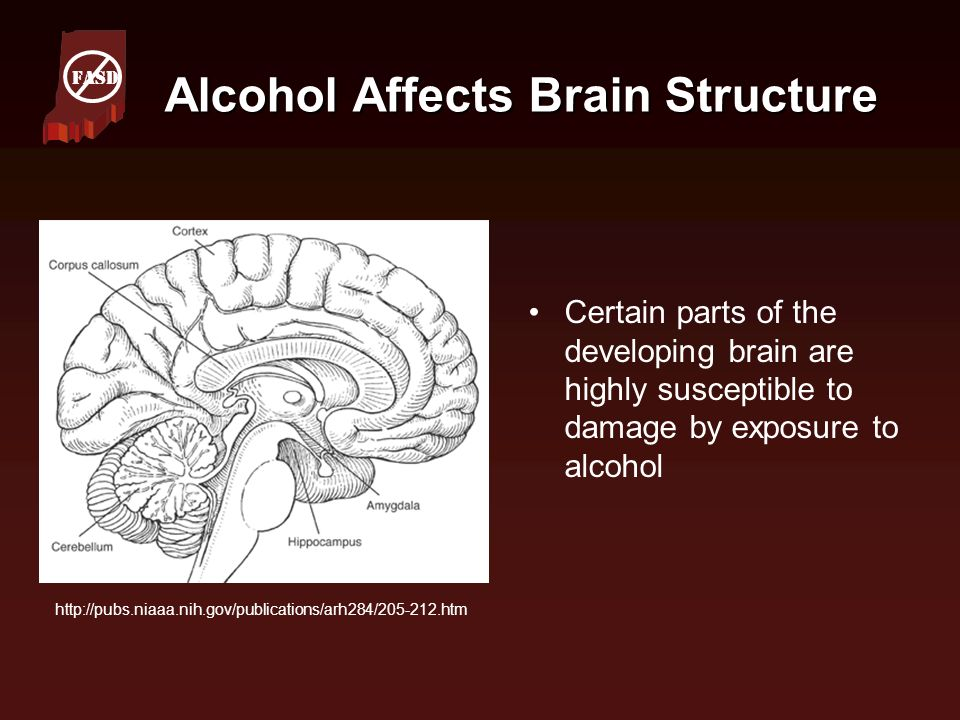 Alcohol Affects Brain Structure