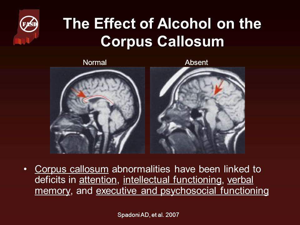 The Effect of Alcohol on the Corpus Callosum