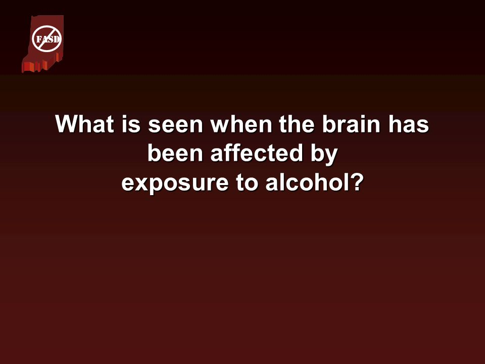 What is seen when the brain has been affected by exposure to alcohol