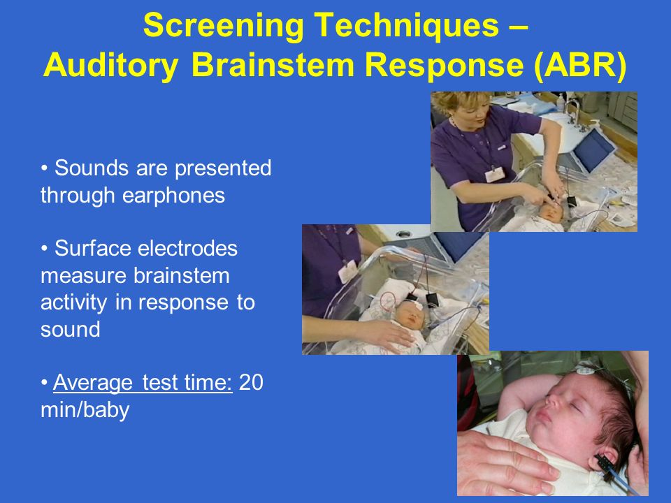 Screening Techniques – Auditory Brainstem Response (ABR)