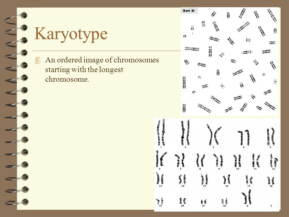 Karyotype An ordered image of chromosomes starting with the longest chromosome.