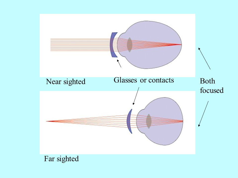 Glasses or contacts Near sighted Both focused Far sighted
