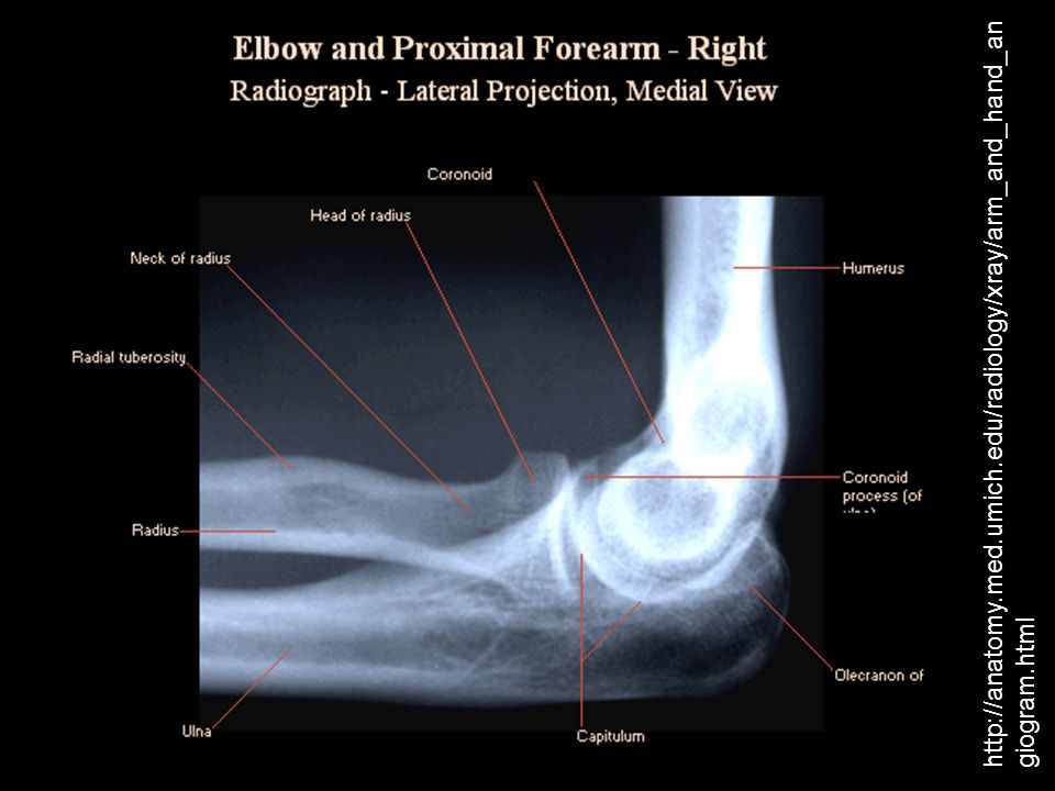 Modern Hand Xray Anatomy Gift Anatomy And Physiology Biology