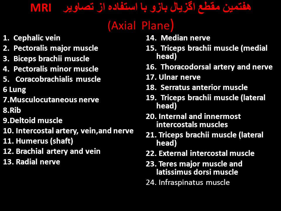 upper limp. - ppt download, Cephalic Vein