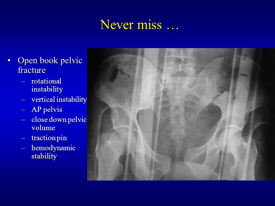 Management of Open Fractures - ppt download