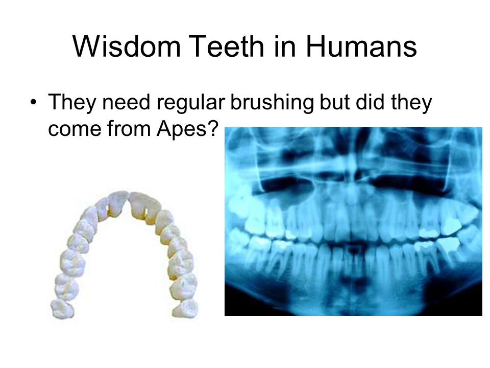 Wisdom Teeth in Humans They need regular brushing but did they come from Apes