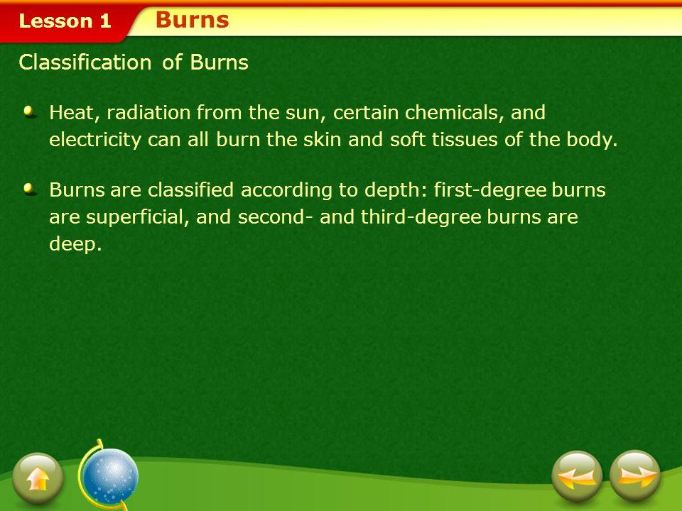 Burns Classification of Burns