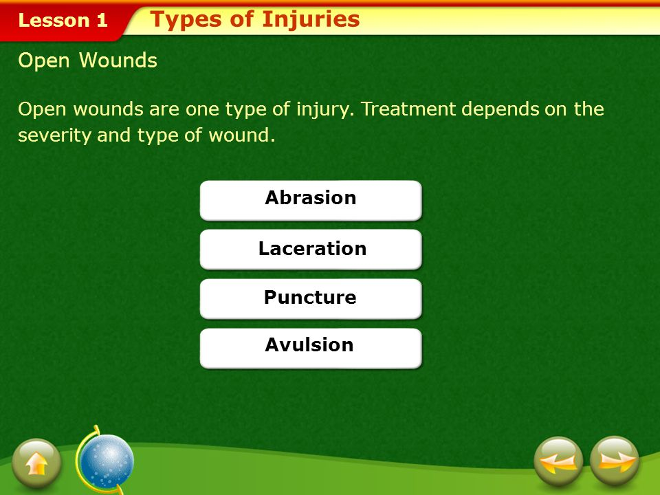 Types of Injuries Open Wounds