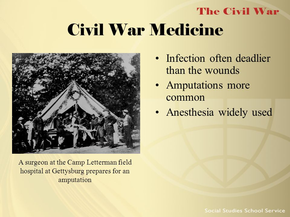 Civil War Medicine Infection often deadlier than the wounds