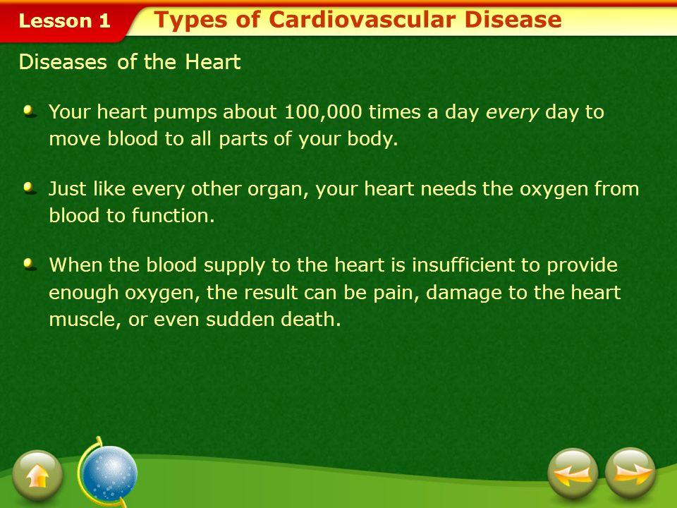 Types of Cardiovascular Disease