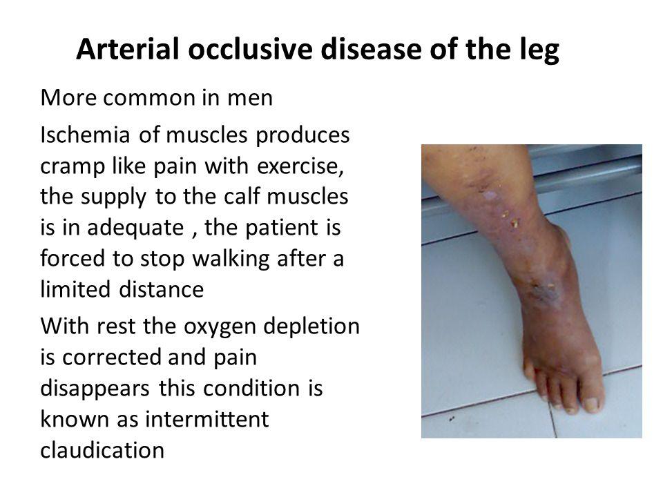 tibial disease