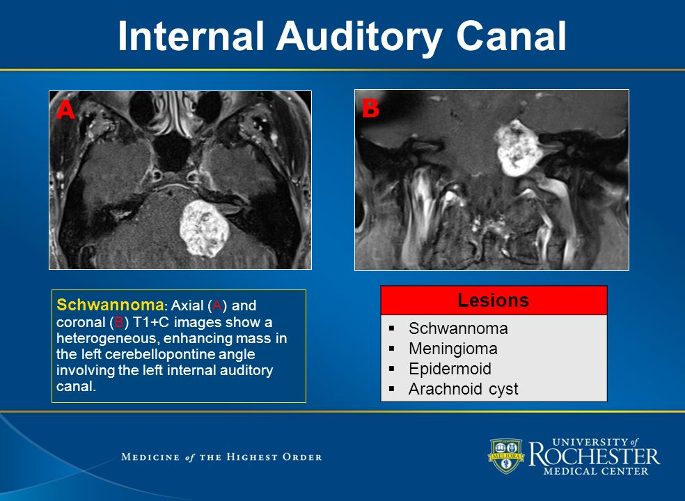 EE 137: MR Imaging Review of the Skull Base Foramina and ... Labyrinthine Artery