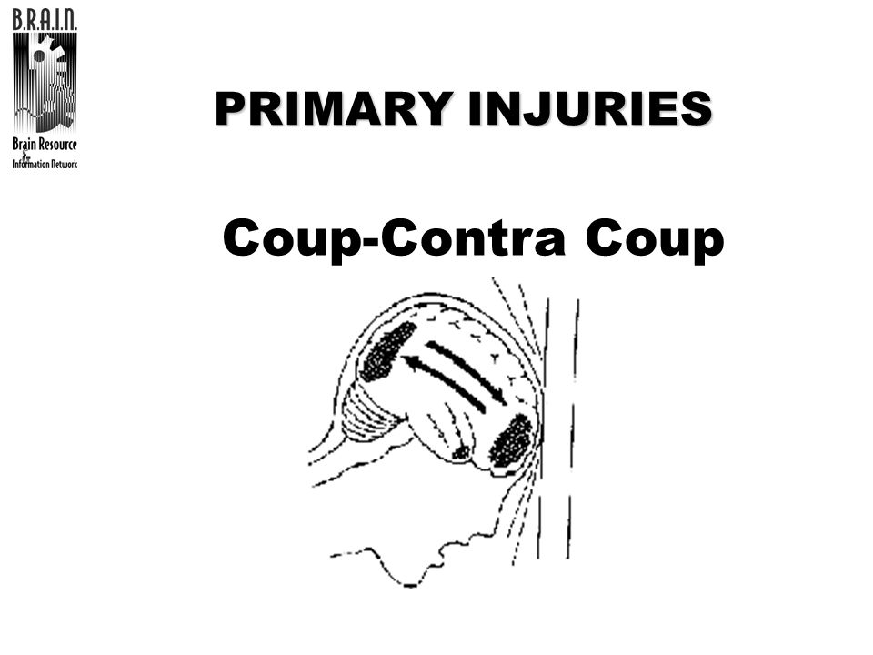 Coup-Contra Coup PRIMARY INJURIES TRAINER: