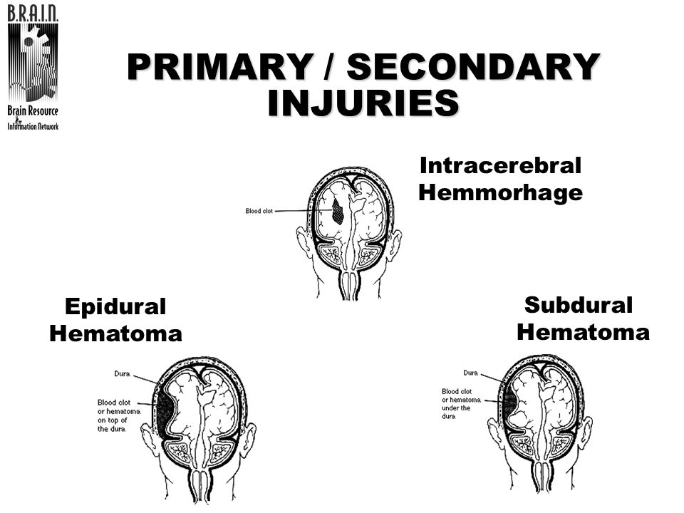 PRIMARY / SECONDARY INJURIES