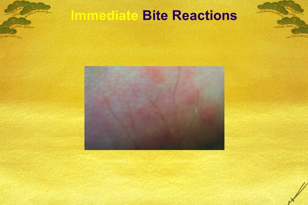 Immediate Bite Reactions