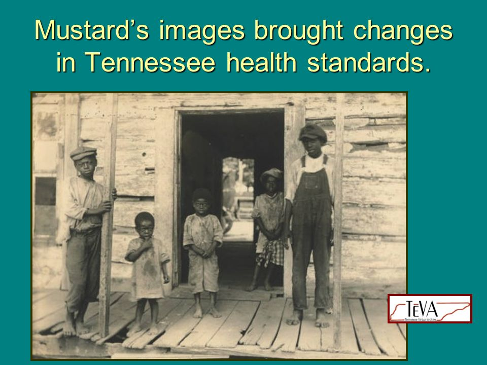 Mustard's images brought changes in Tennessee health standards.