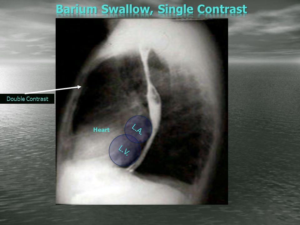 Barium Studies For Git Radiographic Anatomy Pathology Ppt Video