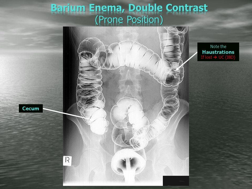 Barium Enema: Purpose, Procedure & Risks - Healthline