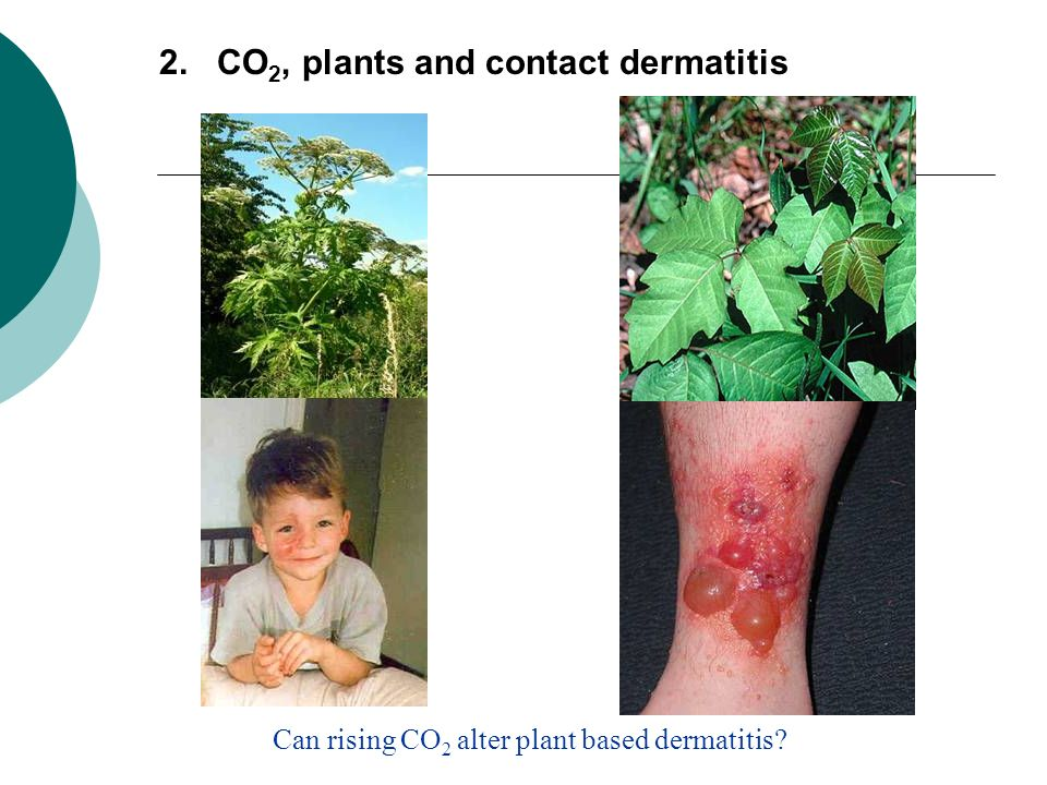 2. CO2, plants and contact dermatitis