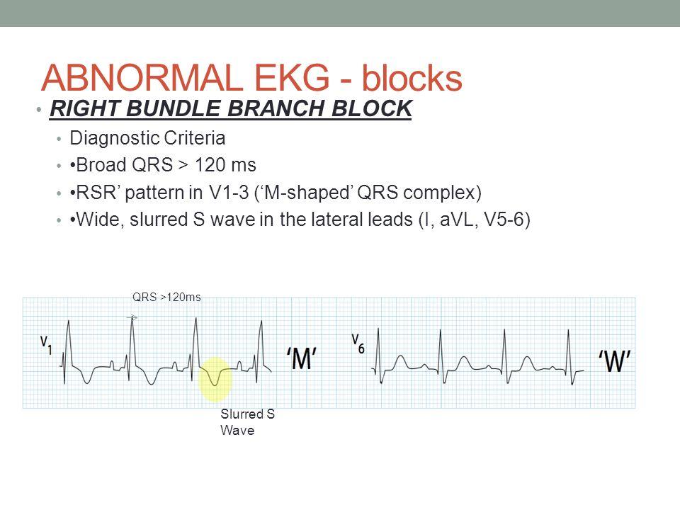 left bundle branch block criteria pdf