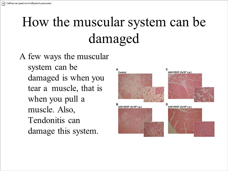 How the muscular system can be damaged