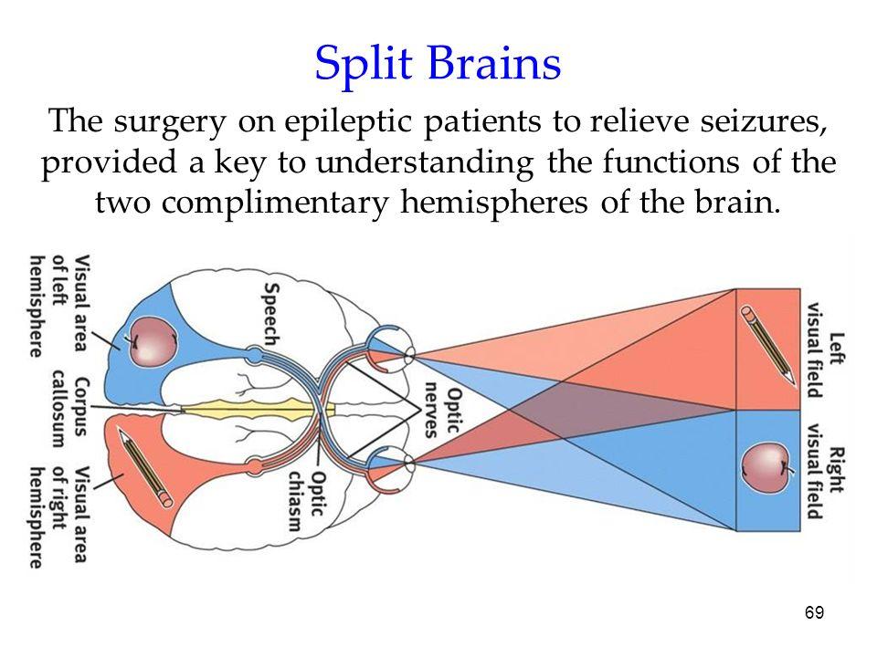 Split Brains