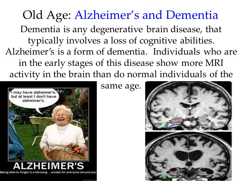 Old Age: Alzheimer's and Dementia