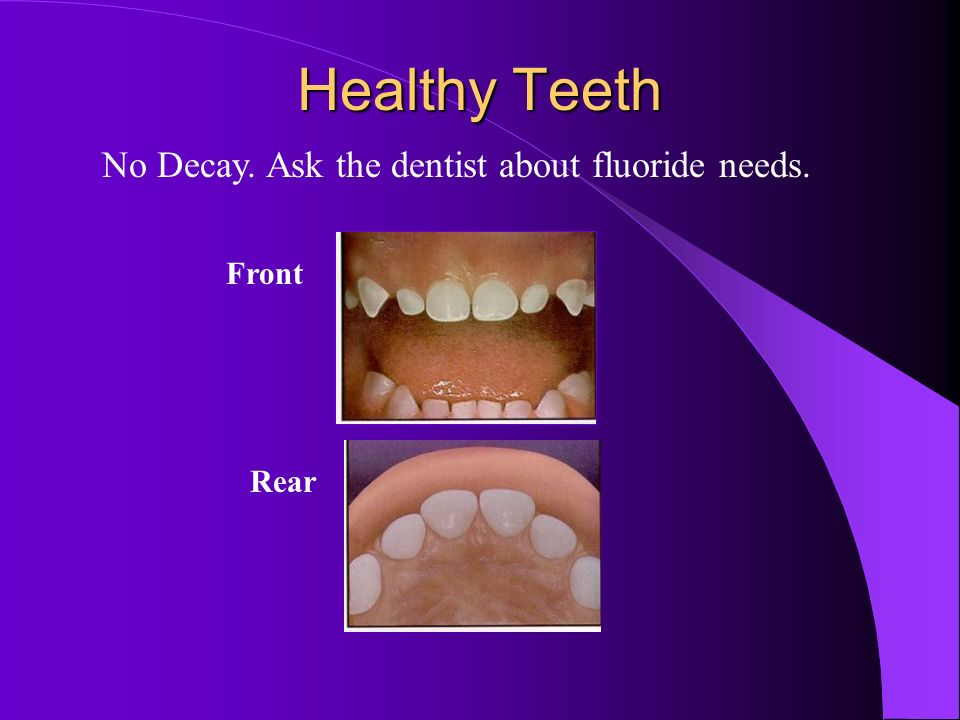 No Decay. Ask the dentist about fluoride needs.