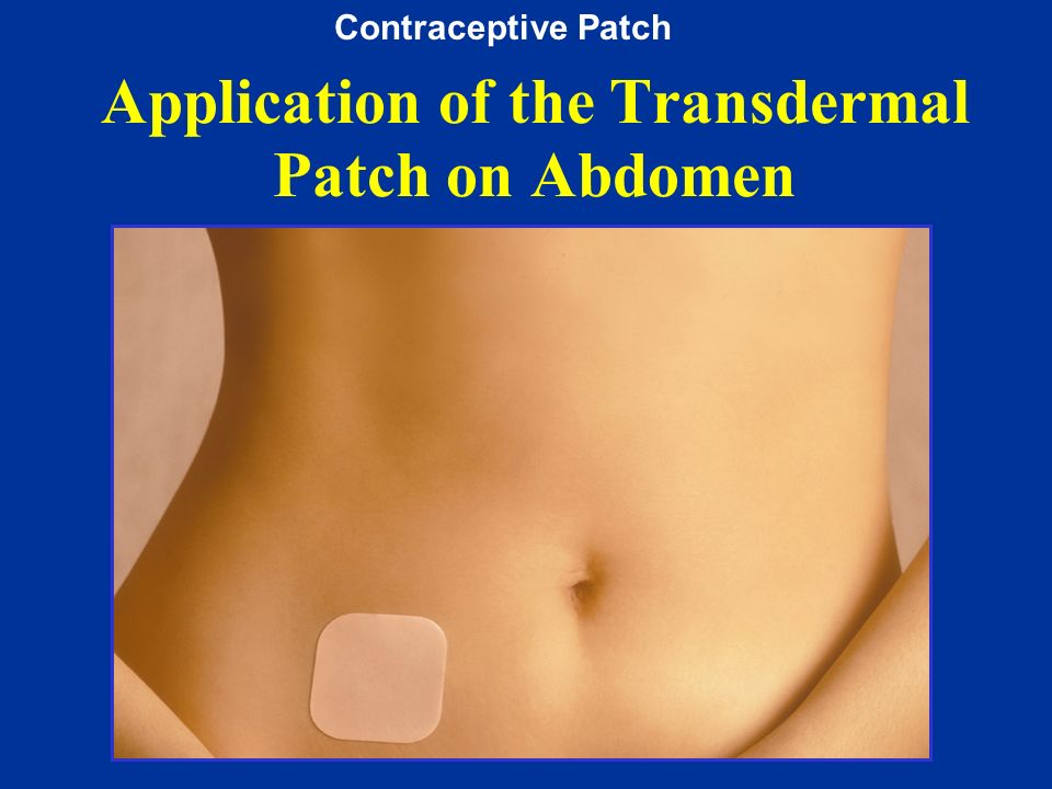 Application of the Transdermal Patch on Abdomen